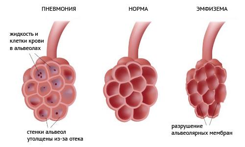 Воспалительные явления в легких