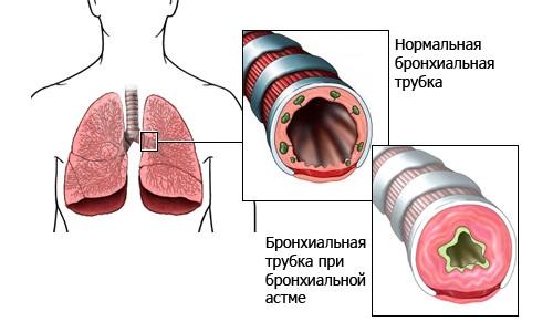 Схематическое изображение бронхиальной астмы