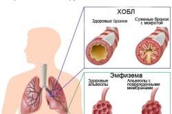 Хронический обструктивный бронхит  как следствие бронхиальной астмы