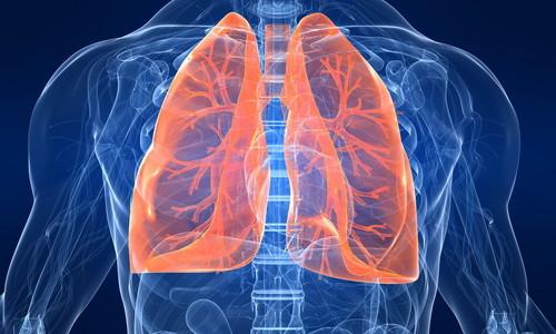 Бронхит является заболеванием легких