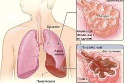 Схема легких при возникновении пневмонии