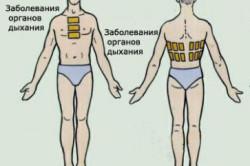 Схема наложения горчичников при заболеваниях органов дыхания