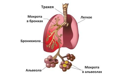 Изображение пневмонии легких