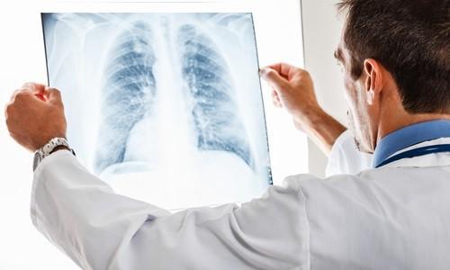 Скрытая форма пневмонии