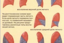 Воспаление при пневмонии